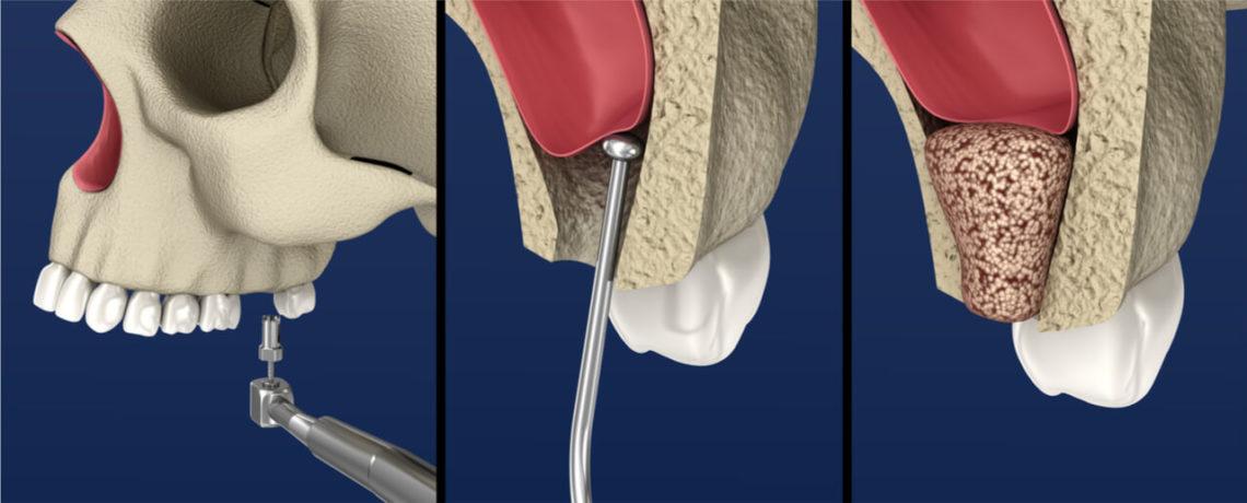 sinus lift surgery alternatives